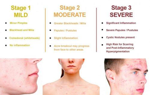 saw palmetto for acne
