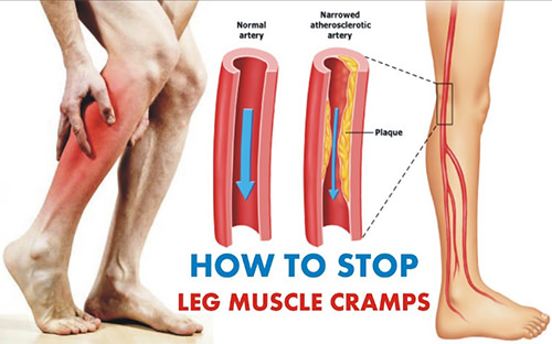 How to Stop Leg Cramps at Night